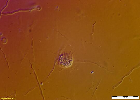 Amoeba termite gut Image_1468 60 oil