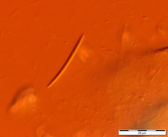 Bacillus large fusiform Image_764