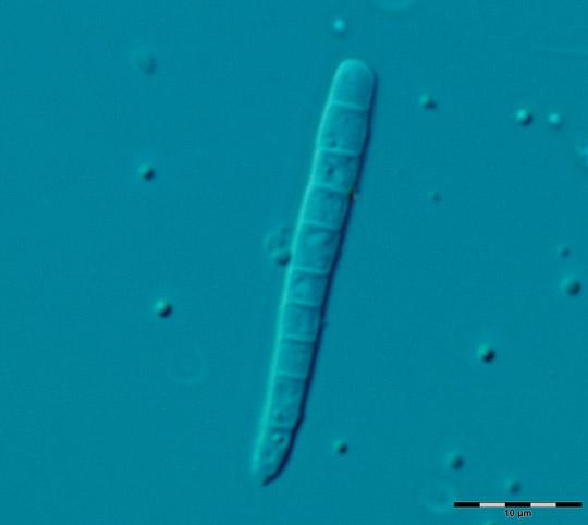Large segmented bacillus web size Image_1428